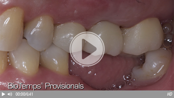 Restoring the Posterior with a BioTemps® CAD Bridge